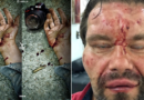 BARBARIE CONTRA LA PRENSA: SALVAJE GOLPIZA DIO FAES A OTRO PERIODISTA EN VENEZUELA